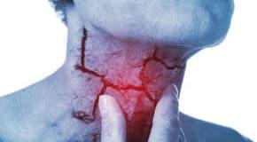 Cancer de la Gorge causes et symptômes