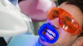 Blanchiment des Dents tout ce qu'il faut savoir