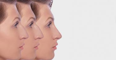 chirurgie repatrice pour le nez